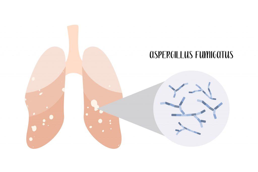 Bioaerosol Assessments Aspergillus Fumigatus Lungs